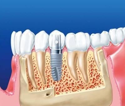 Как делают имплантацию зубов?