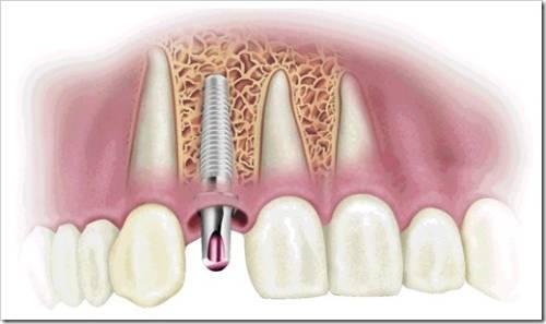 Когда необходима имплантация зуба?