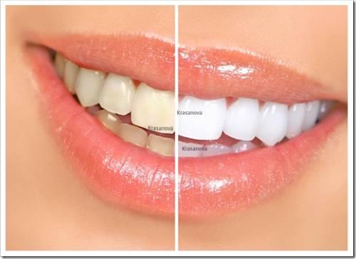 Преимущества применения домашнего метода отбеливания зубной эмали