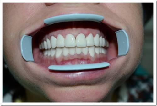 Чистка зубов и отбеливание – это не одно и то же