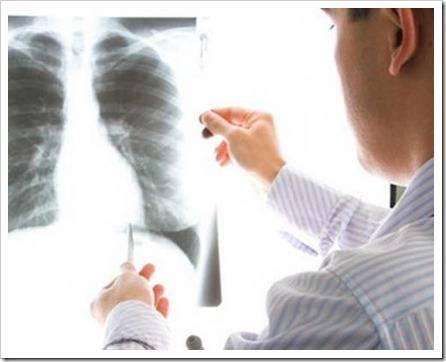Какие болезни лечит пульмонолог?