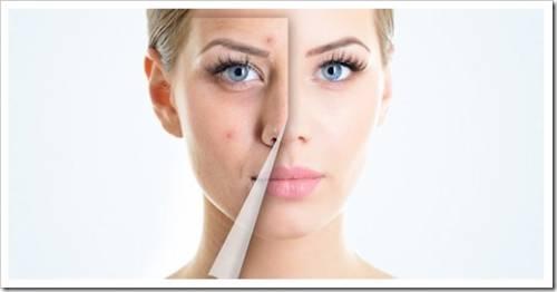 Высыпания на лице – причины появления