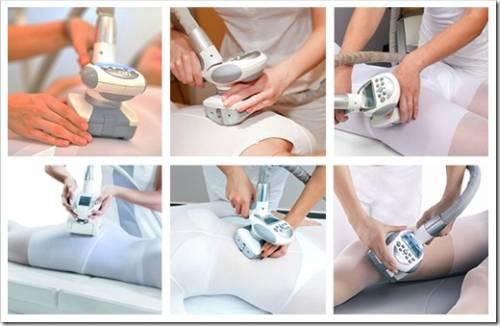 Как осуществляется LPG массаж