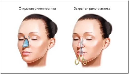 Что такое ринопластика носа?