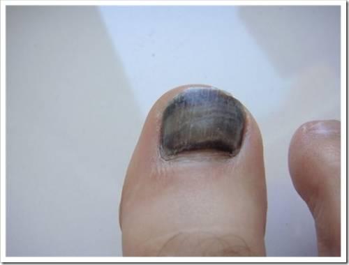 Почему чернеет ноготь на большом пальце ноги?