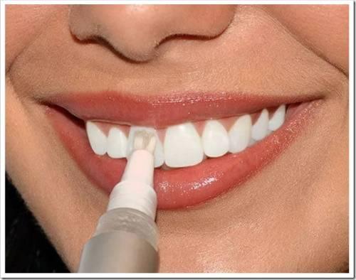 Как делают отбеливание зубов в стоматологии и какие есть методы